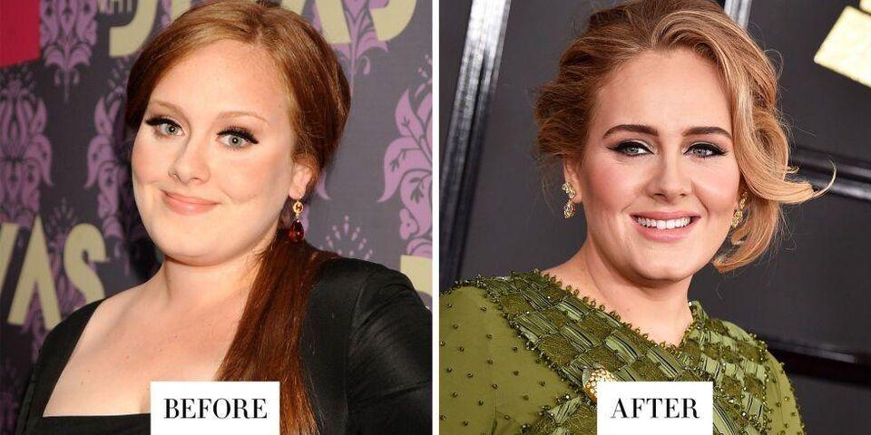 Major Celebrity Eyebrow Transformations