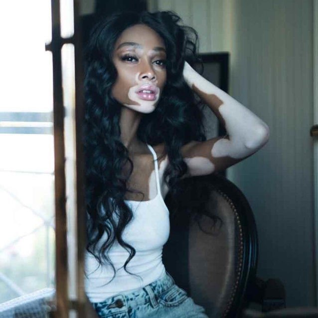 Winnie Harlow Says There Has Never Been A More Important Time For Men To Support Women