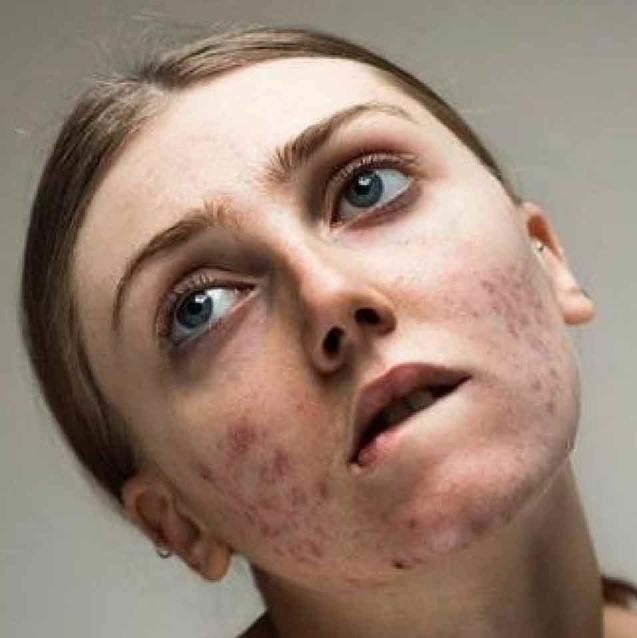 Dubai Model Launches #Freethepimple Campaign To Fight Acne Stigma