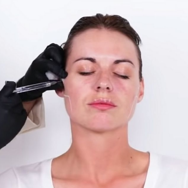 Watch | Everything You Need To Know About Botox